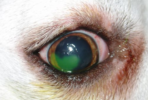 Refractory corneal ulcer