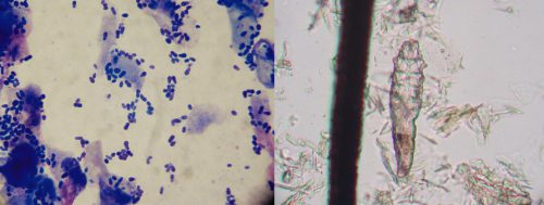 Microscope slides: Left Side: Yeast; Right Side: Demodex